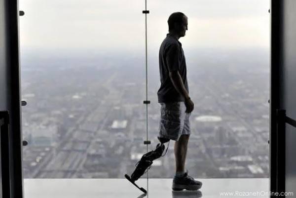 اولین پای مصنوعی رباتیک