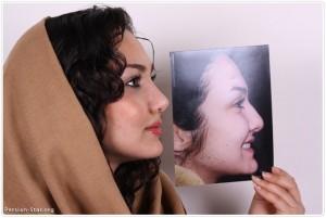جراحی زیبایی بینی و عوارض آن