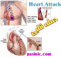 آنچه که باید در باره حمله قلبی بدانیم.