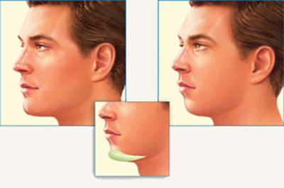 پروتز چانه و آشنایی بیشتر با جراحی زیبایی چانه
