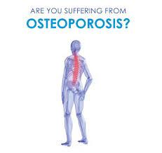 آشنایی با بیماری استئوپروز