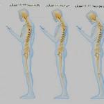 بیماری گردن پیامکی رابیشتر بشناسیم