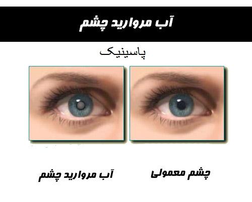 آب مروارید چشم چیست؟