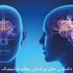 روشهای پیشگیری از سکته مغزی