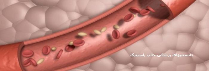 بررسی اثر استرس بر کلسترول و چربی خون