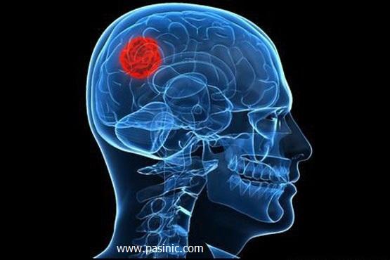 نشانه های ابتلا به تومور مغزی