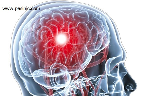 نحوه تشخیص سکته مغزی