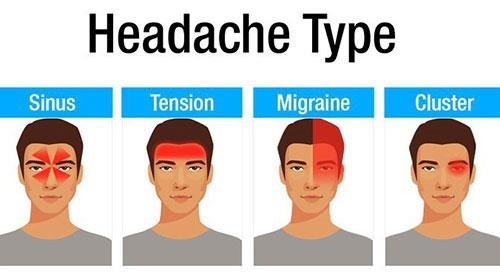 انواع سردرد و علت آن را بشناسید