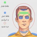 درمان انواع سردرد
