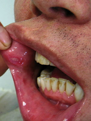 بيماري بهجت و یا بیماری راه ابریشم چيست و آيا درمان دارد؟