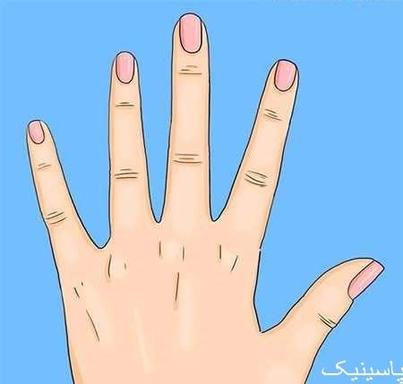 هلال سفید روی ناخن ها نشانهی چیست؟