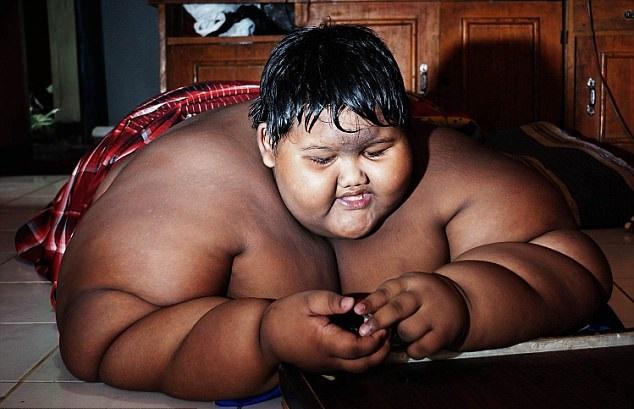 چاق ترین کودک جهان طی یک ماه 31 کیلو لاغر شد.