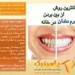 جرم گیری دندان با روشهای طبیعی در منزل