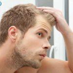 درمان ریزش مو با تغذیه مناسب و صحیح