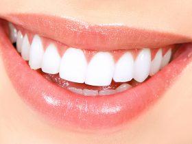 بلیچ دندان